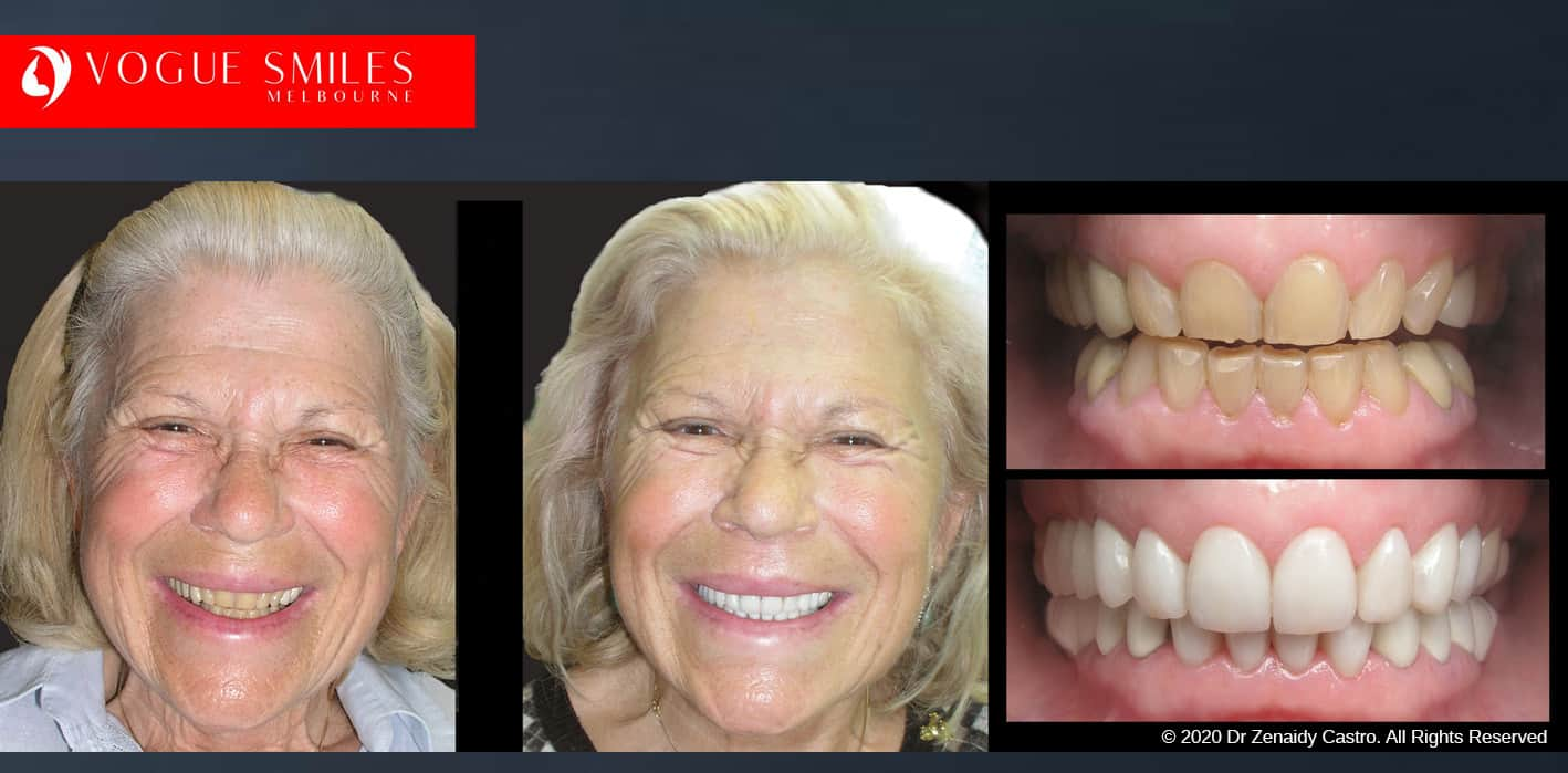 Uneven Bite Treatment in Melbourne, Fix Small, short, worn down, uneven, cracked , chipped smiles teeth with Dental Veneers before and after Melbourne