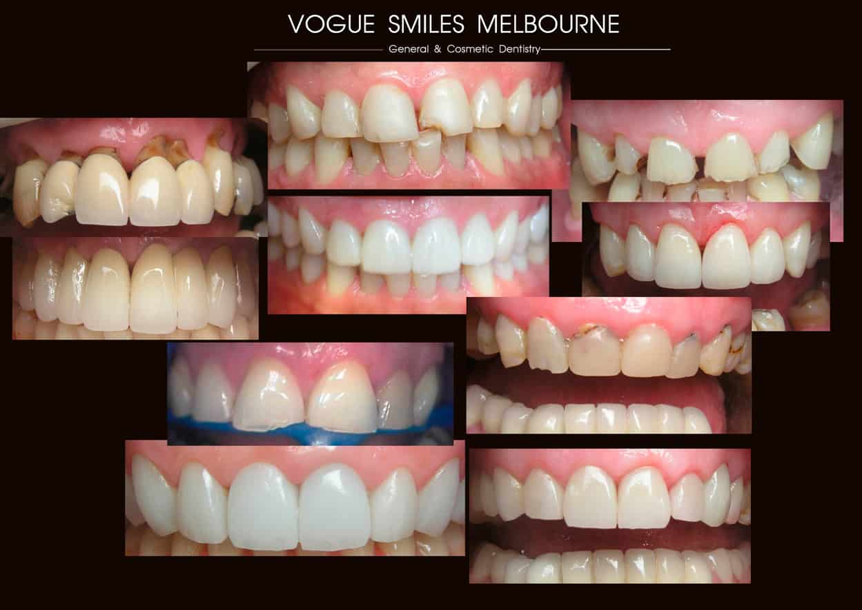 Porcelain Veneers: When Do Veneers Make More Sense Than Crowns?