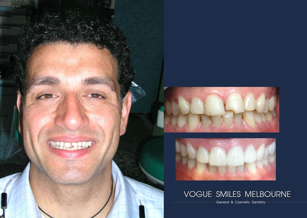 Lumineers vs Traditional Veneers - Differences, Pros, Cons and Cost