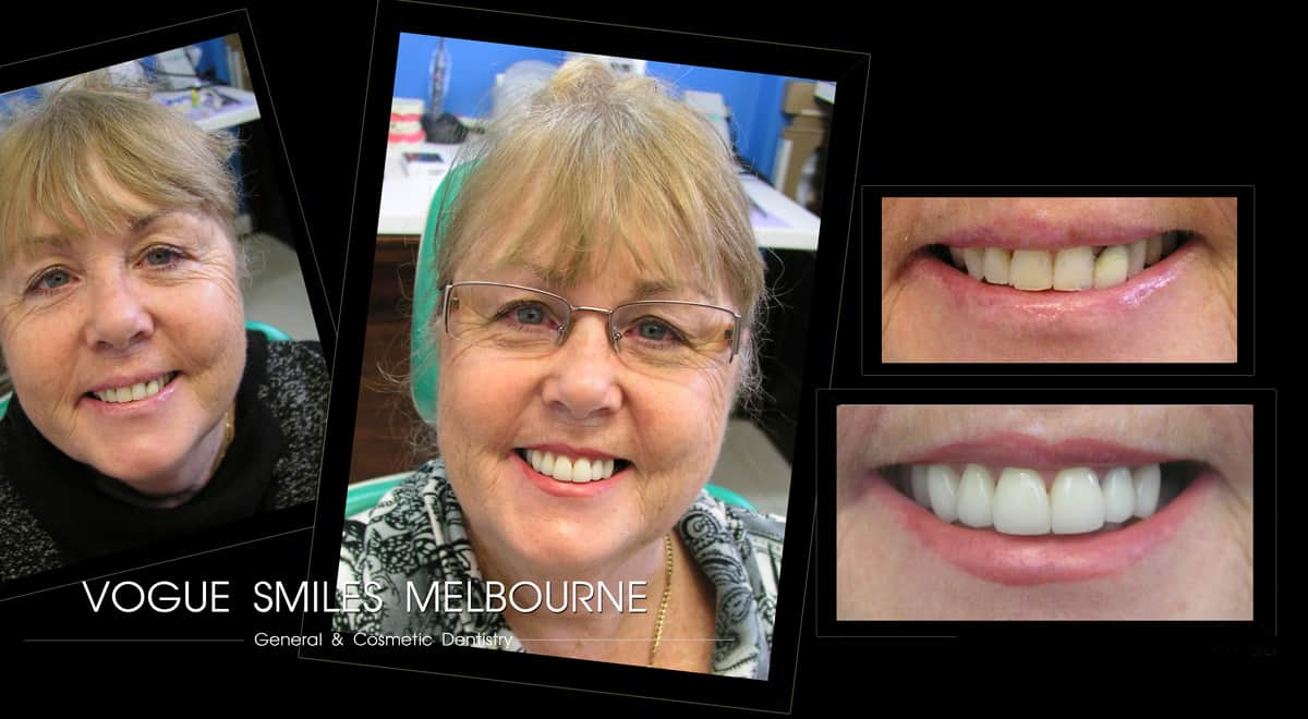 Smile Rejuvenation with Cosmetic Smile Makeovers in Melbourne
