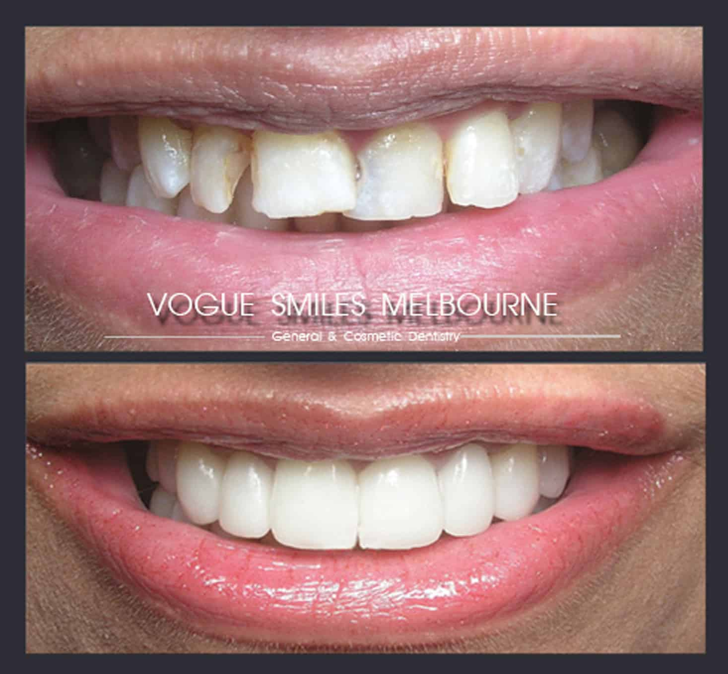 Instantly straighten Crooked teeth and bad bite without Braces or Invisalign with Porcelain Veneer