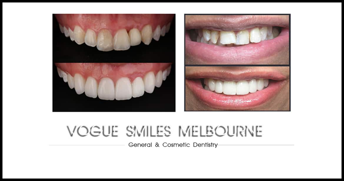 Costs of Cosmetic Dentistry in Melbourne
