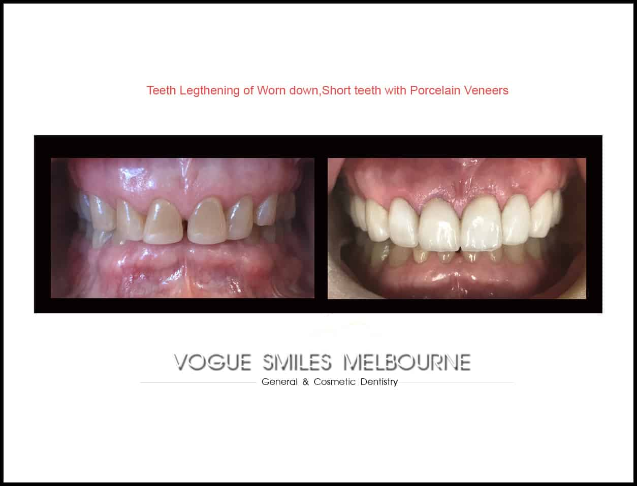 Who are not a good candidate for Dental Veneers
