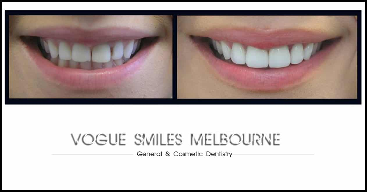 Factors that influence the Cost of Cosmetic Dentistry Melbourne Clinic prices