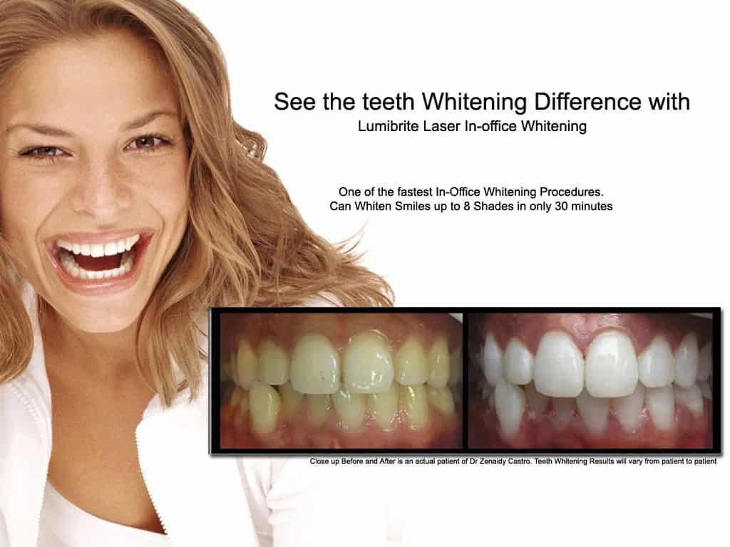 LumiBrite Chairside Whitening System versus Zoom In-Chair Teeth Whitening